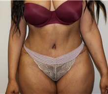 Tummy Tuck After Photo by Kyle Shaddix, MD; Pensacola, FL - Case 35976
