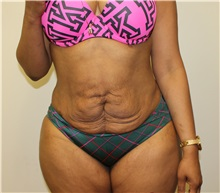 Tummy Tuck Before Photo by Kyle Shaddix, MD; Pensacola, FL - Case 35976