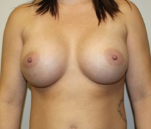 Breast Augmentation After Photo by Kyle Shaddix, MD; Pensacola, FL - Case 35984