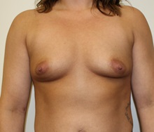 Breast Augmentation Before Photo by Kyle Shaddix, MD; Pensacola, FL - Case 35984
