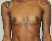 Breast Augmentation Before Photo by Kyle Shaddix, MD; Pensacola, FL - Case 35987