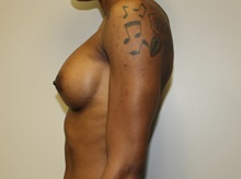 Breast Augmentation After Photo by Kyle Shaddix, MD; Pensacola, FL - Case 35987