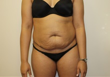 Tummy Tuck Before Photo by Kyle Shaddix, MD; Pensacola, FL - Case 36008