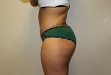 Tummy Tuck After Photo by Kyle Shaddix, MD; Pensacola, FL - Case 36008