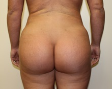 Buttock Lift with Augmentation After Photo by Kyle Shaddix, MD; Pensacola, FL - Case 36090