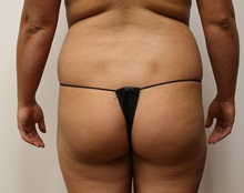 Buttock Lift with Augmentation Before Photo by Kyle Shaddix, MD; Pensacola, FL - Case 36090