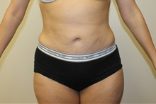 Liposuction After Photo by Kyle Shaddix, MD; Pensacola, FL - Case 36092