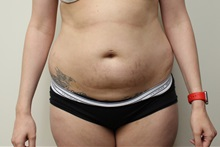 Liposuction Before Photo by Kyle Shaddix, MD; Pensacola, FL - Case 36092