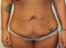 Tummy Tuck Before Photo by Kyle Shaddix, MD; Pensacola, FL - Case 36241