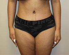 Tummy Tuck After Photo by Kyle Shaddix, MD; Pensacola, FL - Case 36243