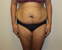 Tummy Tuck Before Photo by Kyle Shaddix, MD; Pensacola, FL - Case 36243