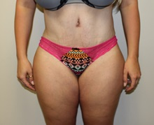 Tummy Tuck After Photo by Kyle Shaddix, MD; Pensacola, FL - Case 36248