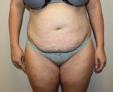 Tummy Tuck Before Photo by Kyle Shaddix, MD; Pensacola, FL - Case 36248
