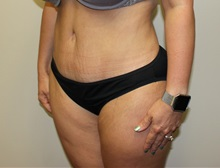 Tummy Tuck After Photo by Kyle Shaddix, MD; Pensacola, FL - Case 36252