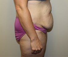Tummy Tuck Before Photo by Kyle Shaddix, MD; Pensacola, FL - Case 36252