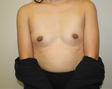 Breast Augmentation Before Photo by Kyle Shaddix, MD; Pensacola, FL - Case 36273