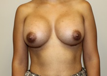 Breast Augmentation After Photo by Kyle Shaddix, MD; Pensacola, FL - Case 36278