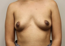 Breast Augmentation Before Photo by Kyle Shaddix, MD; Pensacola, FL - Case 36278