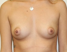 Breast Augmentation Before Photo by Kyle Shaddix, MD; Pensacola, FL - Case 36286