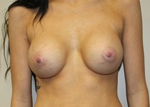 Breast Augmentation After Photo by Kyle Shaddix, MD; Pensacola, FL - Case 36295