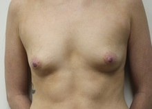 Breast Augmentation Before Photo by Kyle Shaddix, MD; Pensacola, FL - Case 36295