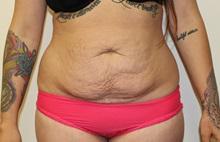 Tummy Tuck Before Photo by Kyle Shaddix, MD; Pensacola, FL - Case 36302