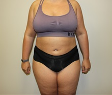 Liposuction After Photo by Kyle Shaddix, MD; Pensacola, FL - Case 36303