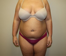 Liposuction Before Photo by Kyle Shaddix, MD; Pensacola, FL - Case 36303