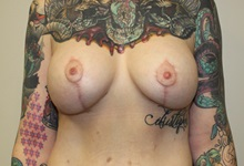 Breast Lift After Photo by Kyle Shaddix, MD; Pensacola, FL - Case 36339