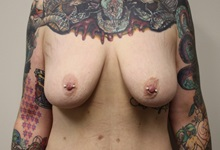 Breast Lift Before Photo by Kyle Shaddix, MD; Pensacola, FL - Case 36339
