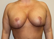 Breast Lift After Photo by Kyle Shaddix, MD; Pensacola, FL - Case 36340