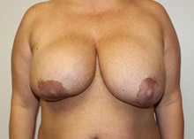 Breast Lift Before Photo by Kyle Shaddix, MD; Pensacola, FL - Case 36340