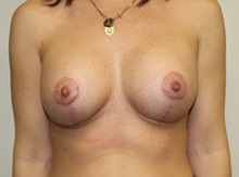 Breast Lift After Photo by Kyle Shaddix, MD; Pensacola, FL - Case 36392