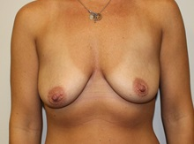 Breast Lift Before Photo by Kyle Shaddix, MD; Pensacola, FL - Case 36392