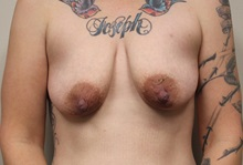 Breast Lift Before Photo by Kyle Shaddix, MD; Pensacola, FL - Case 36393