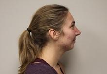 Rhinoplasty After Photo by Kyle Shaddix, MD; Pensacola, FL - Case 36402