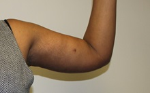 Arm Lift After Photo by Kyle Shaddix, MD; Pensacola, FL - Case 36404