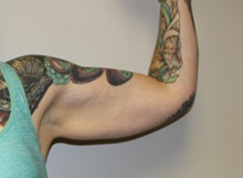 Arm Lift Before Photo by Kyle Shaddix, MD; Pensacola, FL - Case 36406
