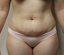 Tummy Tuck Before Photo by Kyle Shaddix, MD; Pensacola, FL - Case 37334
