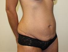Tummy Tuck Before Photo by Kyle Shaddix, MD; Pensacola, FL - Case 37337