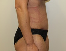 Tummy Tuck After Photo by Kyle Shaddix, MD; Pensacola, FL - Case 37337