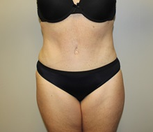 Tummy Tuck After Photo by Kyle Shaddix, MD; Pensacola, FL - Case 37381