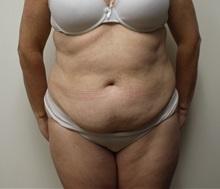 Tummy Tuck Before Photo by Kyle Shaddix, MD; Pensacola, FL - Case 37381