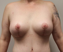 Breast Lift After Photo by Kyle Shaddix, MD; Pensacola, FL - Case 37438