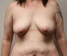 Breast Lift Before Photo by Kyle Shaddix, MD; Pensacola, FL - Case 37438