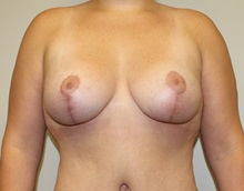 Breast Lift After Photo by Kyle Shaddix, MD; Pensacola, FL - Case 37456