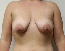 Breast Lift Before Photo by Kyle Shaddix, MD; Pensacola, FL - Case 37456