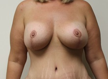 Breast Lift After Photo by Kyle Shaddix, MD; Pensacola, FL - Case 37460