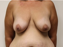 Breast Lift Before Photo by Kyle Shaddix, MD; Pensacola, FL - Case 37460
