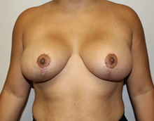 Breast Lift After Photo by Kyle Shaddix, MD; Pensacola, FL - Case 37464